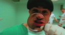 Krankenhaus (Official Video) (VOD)/Jazzkantine